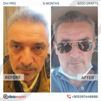 DHI Pro Hair Transplant - 6 Months - 3200 Grafts