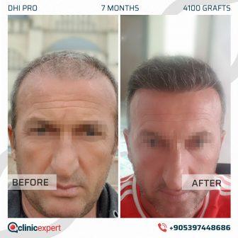DHI Pro Hair Transplant - 7 Months - 4100 Grafts