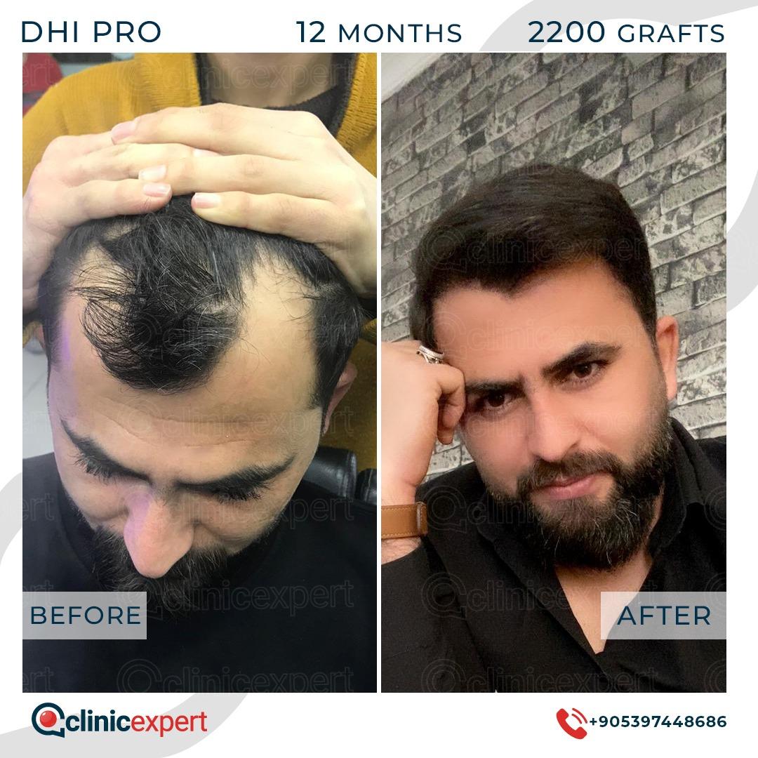 DHI Pro Hair Transplant - 12 Months - 2200 Grafts