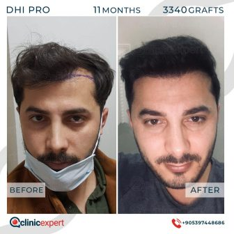 DHI Pro Hair Transplant- 11 Months - 3340 Grafts