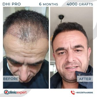 DHI Pro Hair Transplant- 6 Months - 4000 Grafts