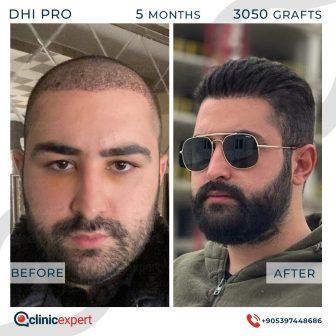 DHI Pro Hair Transplant- 5 Months - 3050 Grafts