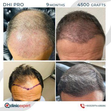 DHI Pro Hair Transplant- 9 Months - 4500Grafts