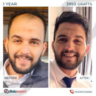 DHI Pro Hair Transplant- 12 Months - 3950 Grafts