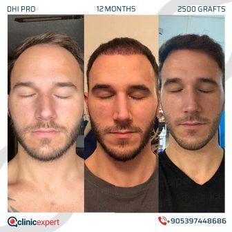 DHI Pro Hair Transplant- 12 Months - 2500 Grafts