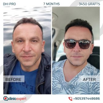 DHI Pro - Hair Transplant - 7 Months - 3450 Grafts