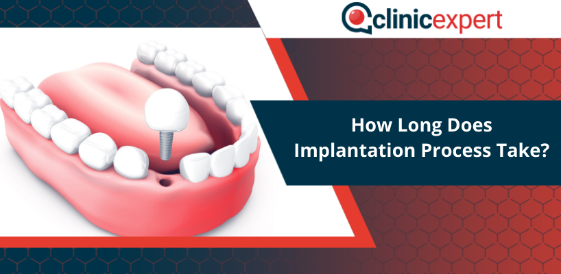How Long Does Implantation Process Take?