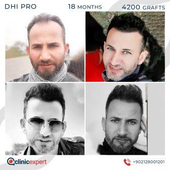 DHI Pro - Hair Transplant - 18 Months - 4200Grafts