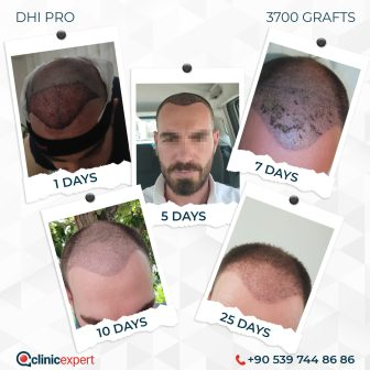 DHI Pro - Hair Transplant - 25 Days - 3700Grafts