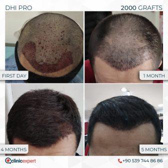 DHI Pro - Hair Transplant - 5 Months - 3700Grafts