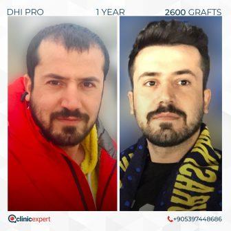 DHI Pro - Hair Transplant - 1 Year - 2600 Grafts