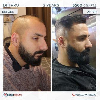 DHI Pro - Hair Transplant - 2 Years - 5500 Grafts