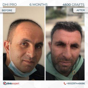 DHI Pro - Hair Transplant - 6 Months - 4600 Grafts
