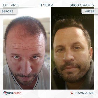 DHI Pro - Hair Transplant - 1 Years - 3800 Grafts