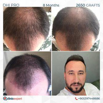 DHI Pro - Hair Transplant - 8 Months - 2650 Grafts