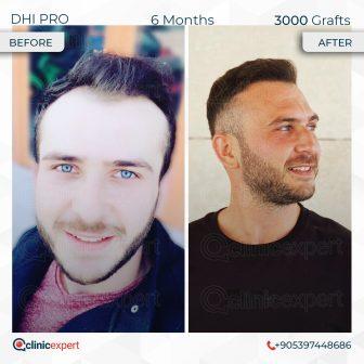 DHI Pro - Hair Transplant - 6 Months - 3000 Grafts