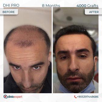 DHI Pro - Hair Transplant - 8 Months - 4000 Grafts