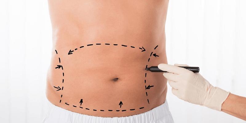 Vaser Liposuction Nedir ?