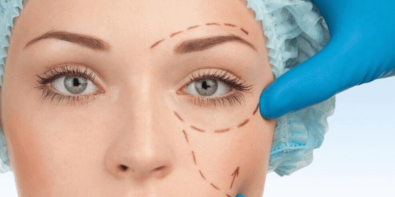Göz Kapağı Estetiği(Blefaroplasti)