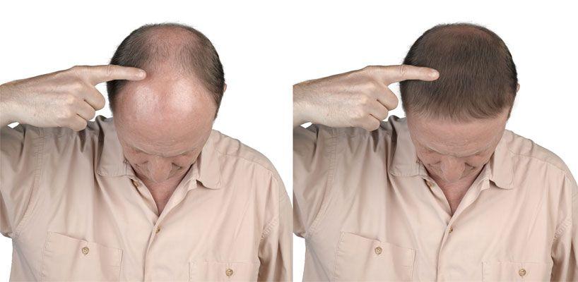 Saç Ekiminde Greft Nedir?