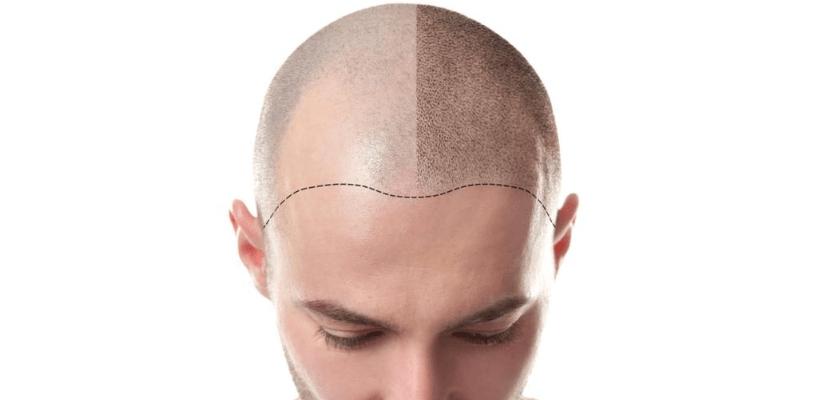 DHI (Kalem Tekniği) Saç Ekimi Fiyatları Ne Kadardır?