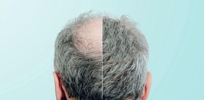Saç Ekimi Yaptıran Ünlüler