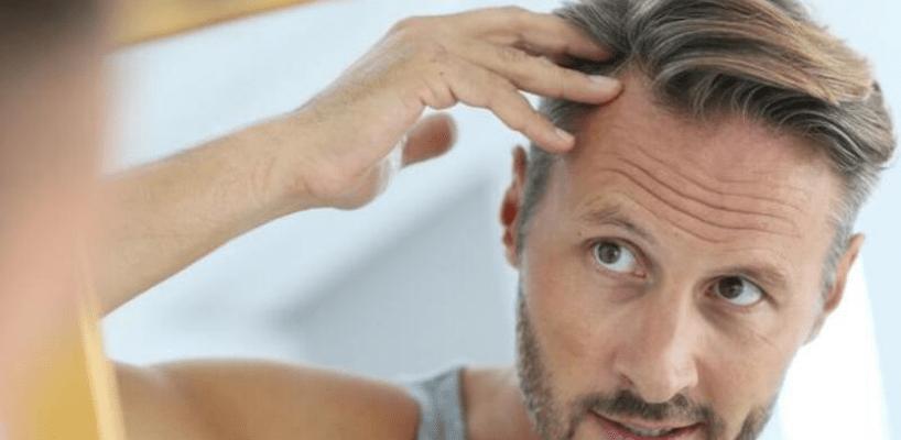 Saç Ekimi Yaptıranlar