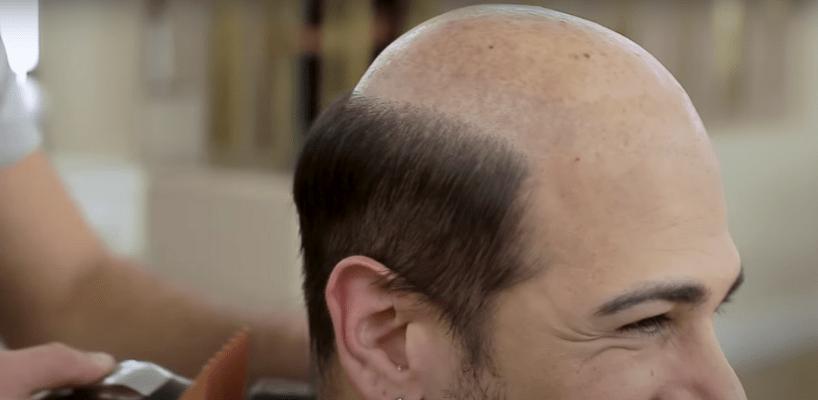 Tepe Bölgesi Saç Ekimi
