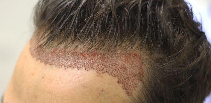 saç ekimi 1 yıl sonrası