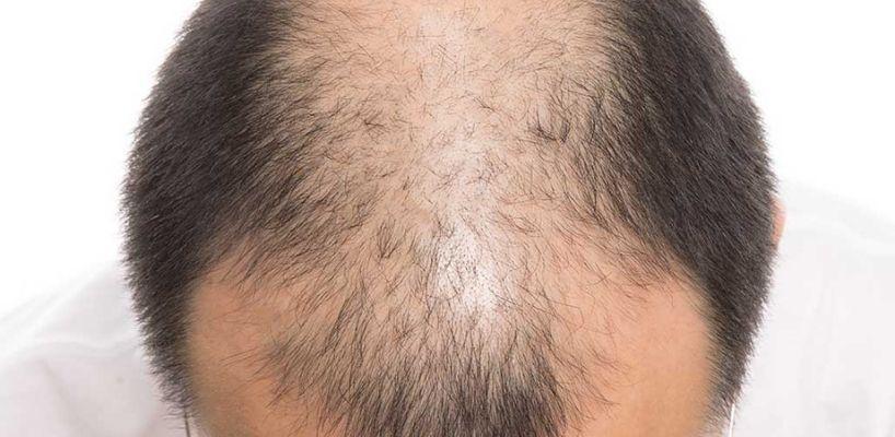 Saç Ekimi 15 Gün Sonrası Durum