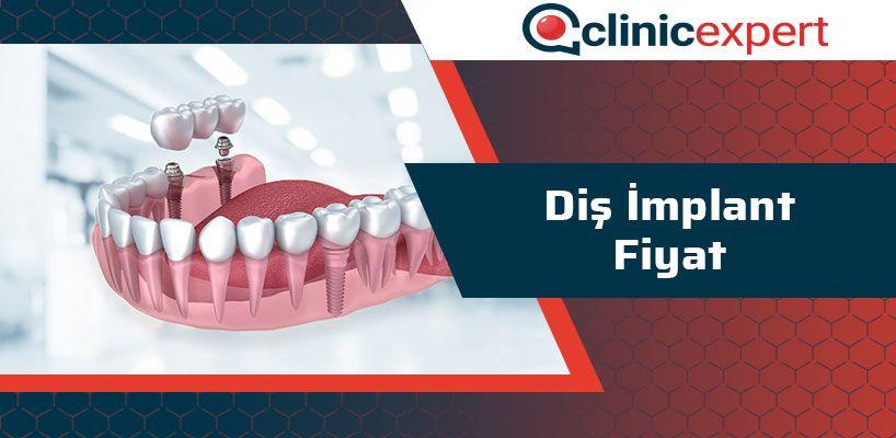 Diş İmplant Fiyat
