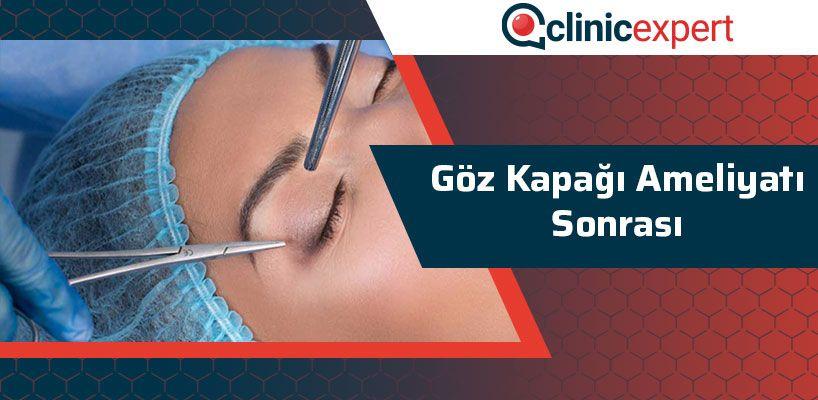 goz-kapagi-ameliyati-sonrasi-cln