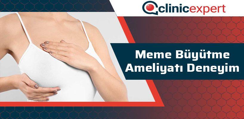 meme-buyutme-ameliyati-deneyim-cln
