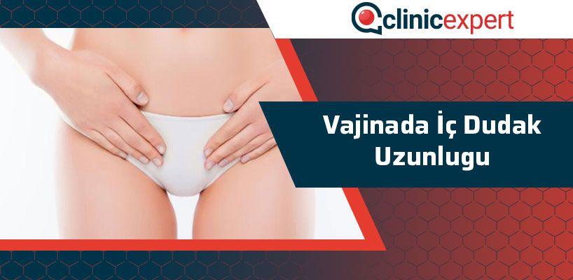 vajinada-ic-dudak-uzunlugu-cln