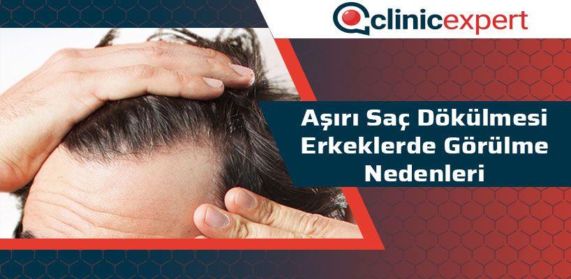 Aşırı Saç Dökülmesi Erkeklerde Görülme Nedenleri
