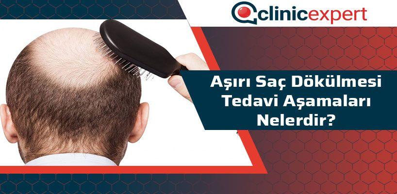 Aşırı Saç Dökülmesi Tedavi Aşamaları Nelerdir?