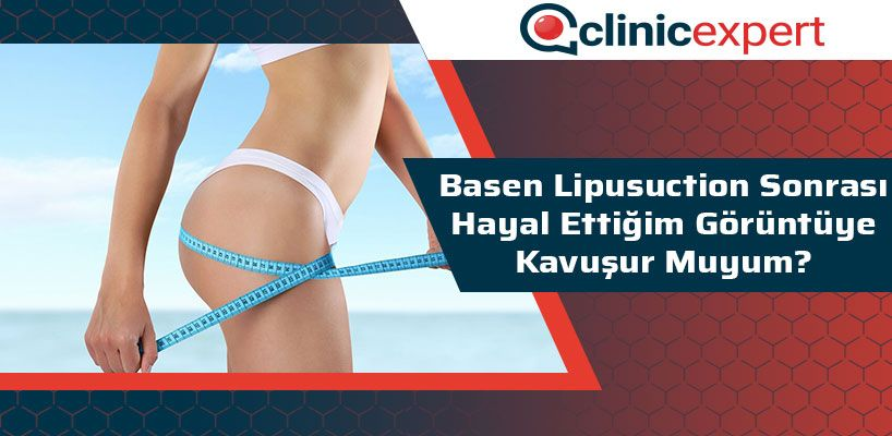 basen-lipusuction-sonrasi-hayal-ettigim-goruntuye-kavusur-muyum-cln