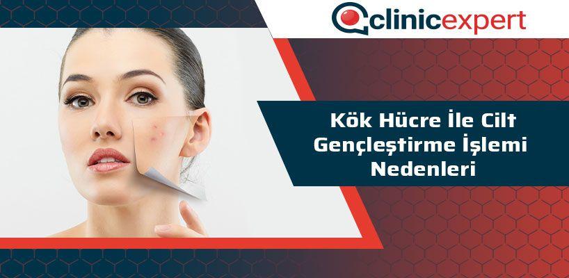 kok-hucre-ile-cilt-genclestirme-islemi-nedenleri-cln
