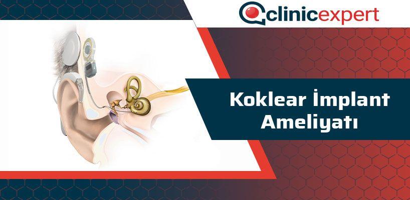 koklear-implant-ameliyati-cln