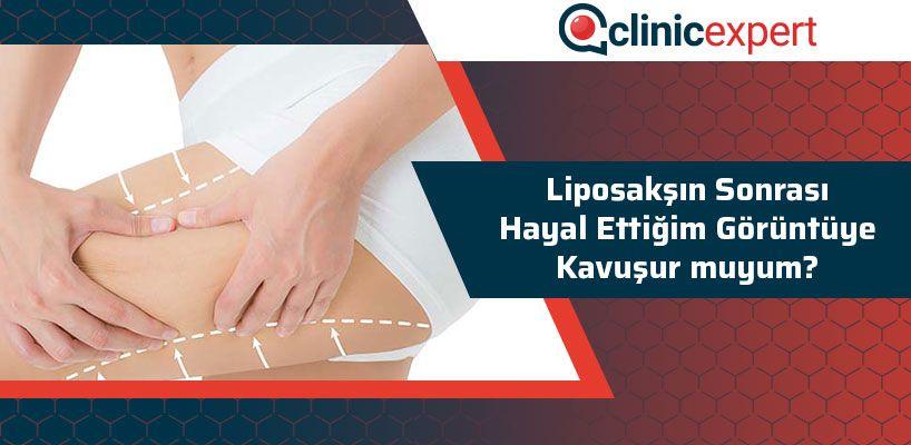 liposaksin-sonrasi-hayal-ettigim-goruntuye-kavusur-muyum-cln