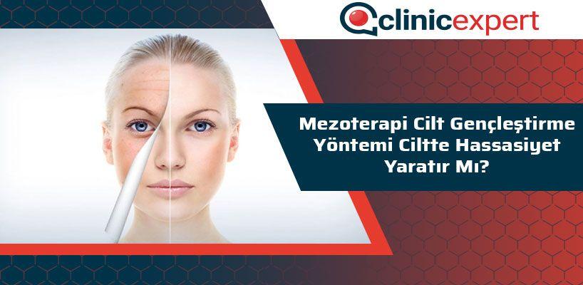 mezoterapi-cilt-genclestirme-yontemi-ciltte-hassasiyet-yaratir-mi-cln