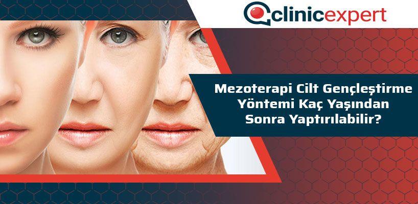 mezoterapi-cilt-genclestirme-yontemi-kac-yasindan-sonra-yaptirilabilir-cln