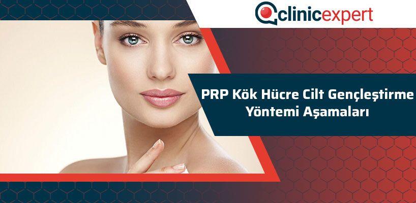 prp-kok-hucre-cilt-genclestirme-yontemi-asamalari-cln