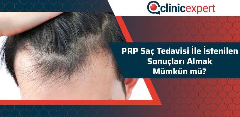 PRP Saç Tedavisi İle İstenilen Sonuçları Almak Mümkün Mü?