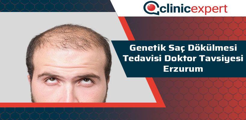 Genetik Saç Dökülmesi Tedavisi Doktor Tavsiye Erzurum