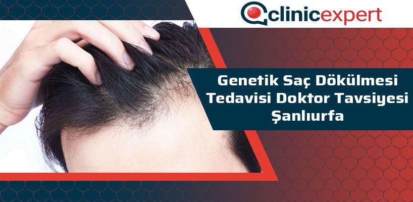 genetik-sac-dokulmesi-tedavisi-doktor-tavsiyesi-sanliurfa-cln