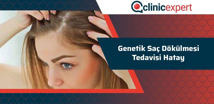 Genetik Saç Dökülmesi Tedavisi Hatay