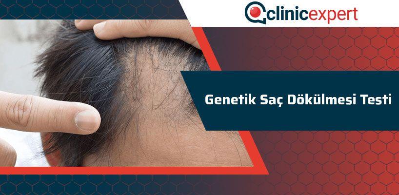 genetik-sac-dokulmesi-testi-cln