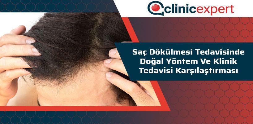 sac-dokulmesi-tedavisinde-dogal-yontem-ve-klinik-tedavisi-karsilastirmasi-cln