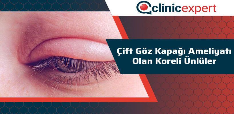 Çift Göz Kapağı Ameliyatı Olan Koreli Ünlüler